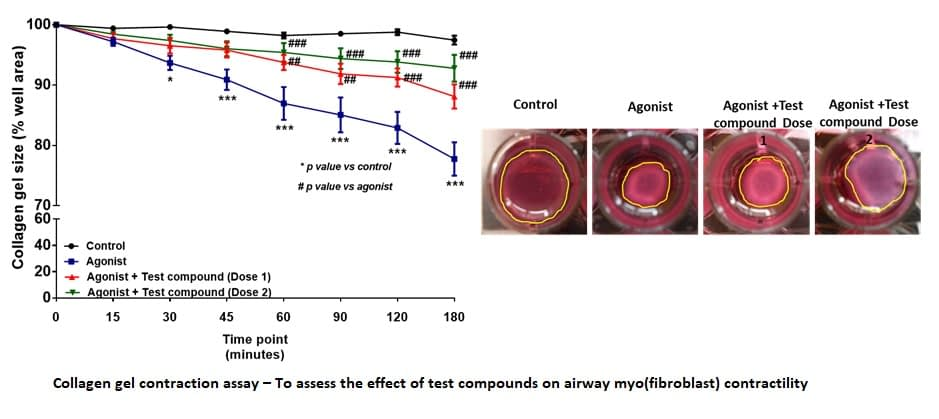 Asthma and Airway Inflammation-3